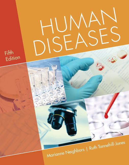 Test Bank for Human Diseases, 5th Edition By Marianne Neighbors, Ruth Tannehill-Jones, ISBN-10: 1337396826, ISBN-13: 9781337396820
